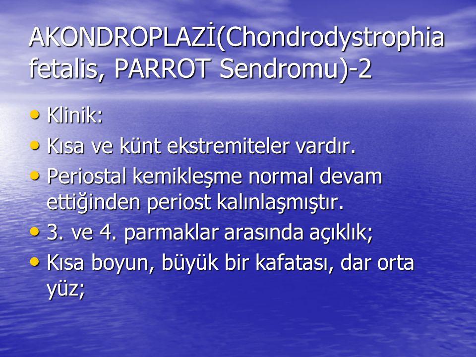 AKONDROPLAZİ(Chondrodystrophia fetalis, PARROT Sendromu)-2 Klinik: Klinik: Kısa ve künt ekstremiteler vardır. Kısa ve künt ekstremiteler vardır. Perio