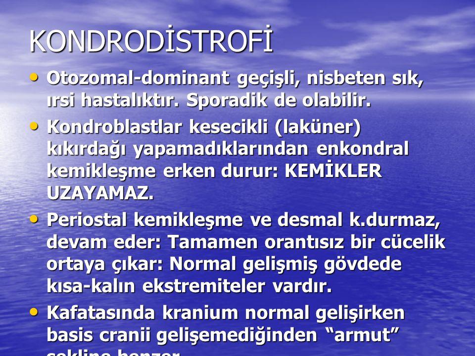 KONDRODİSTROFİ Otozomal-dominant geçişli, nisbeten sık, ırsi hastalıktır. Sporadik de olabilir. Otozomal-dominant geçişli, nisbeten sık, ırsi hastalık
