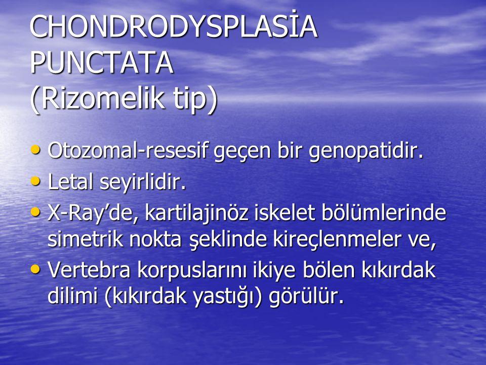 CHONDRODYSPLASİA PUNCTATA (Rizomelik tip) Otozomal-resesif geçen bir genopatidir. Otozomal-resesif geçen bir genopatidir. Letal seyirlidir. Letal seyi