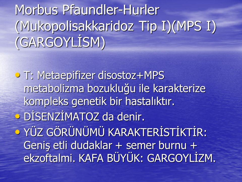 Morbus Pfaundler-Hurler (Mukopolisakkaridoz Tip I)(MPS I) (GARGOYLİSM) T: Metaepifizer disostoz+MPS metabolizma bozukluğu ile karakterize kompleks gen