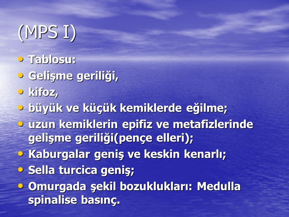 (MPS I) Tablosu: Tablosu: Gelişme geriliği, Gelişme geriliği, kifoz, kifoz, büyük ve küçük kemiklerde eğilme; büyük ve küçük kemiklerde eğilme; uzun k