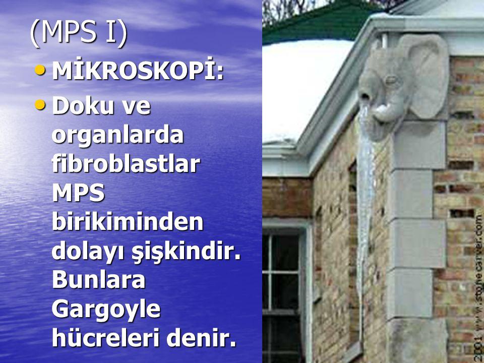 (MPS I) MİKROSKOPİ: MİKROSKOPİ: Doku ve organlarda fibroblastlar MPS birikiminden dolayı şişkindir. Bunlara Gargoyle hücreleri denir. Doku ve organlar