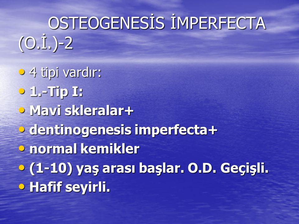 OSTEOGENESİS İMPERFECTA (O.İ.)-2 4 tipi vardır: 4 tipi vardır: 1.-Tip I: 1.-Tip I: Mavi skleralar+ Mavi skleralar+ dentinogenesis imperfecta+ dentinog