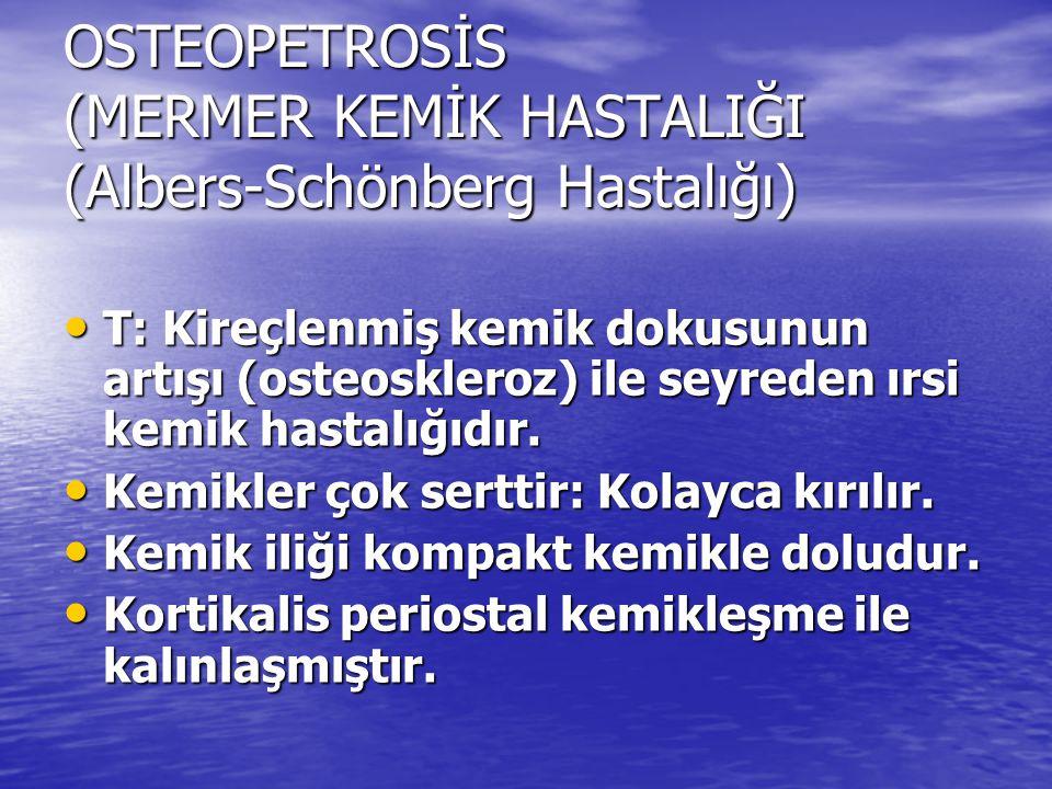 OSTEOPETROSİS (MERMER KEMİK HASTALIĞI (Albers-Schönberg Hastalığı) T: Kireçlenmiş kemik dokusunun artışı (osteoskleroz) ile seyreden ırsi kemik hastal