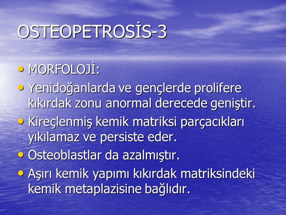 OSTEOPETROSİS-3 MORFOLOJİ: MORFOLOJİ: Yenidoğanlarda ve gençlerde prolifere kıkırdak zonu anormal derecede geniştir. Yenidoğanlarda ve gençlerde proli