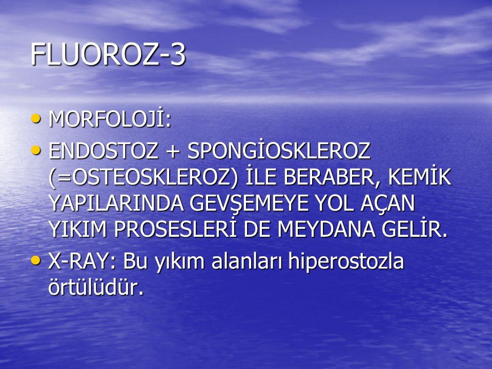 FLUOROZ-3 MORFOLOJİ: MORFOLOJİ: ENDOSTOZ + SPONGİOSKLEROZ (=OSTEOSKLEROZ) İLE BERABER, KEMİK YAPILARINDA GEVŞEMEYE YOL AÇAN YIKIM PROSESLERİ DE MEYDAN