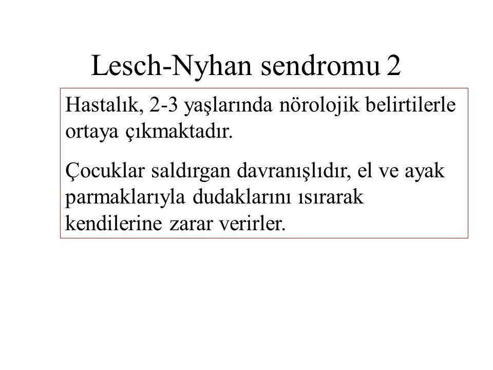 Lesch-Nyhan sendromu 2 Hastalık, 2-3 yaşlarında nörolojik belirtilerle ortaya çıkmaktadır. Çocuklar saldırgan davranışlıdır, el ve ayak parmaklarıyla