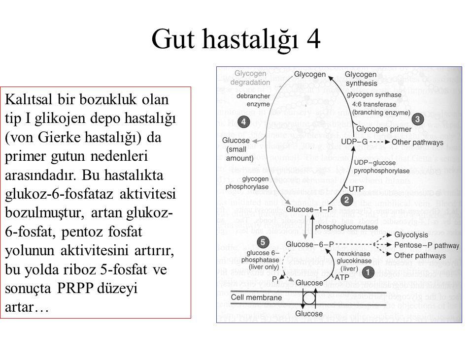 Gut hastalığı 4 Kalıtsal bir bozukluk olan tip I glikojen depo hastalığı (von Gierke hastalığı) da primer gutun nedenleri arasındadır. Bu hastalıkta g