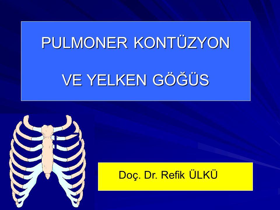 PULMONER KONTÜZYON VE YELKEN GÖĞÜS Doç. Dr. Refik ÜLKÜ