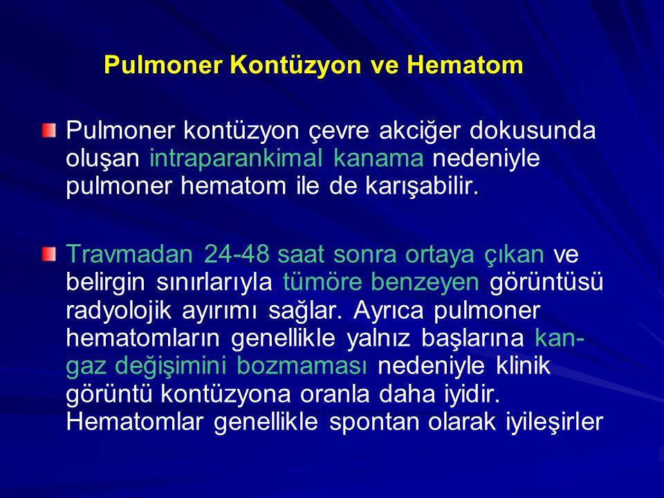 Pulmoner kontüzyon çevre akciğer dokusunda oluşan intraparankimal kanama nedeniyle pulmoner hematom ile de karışabilir.