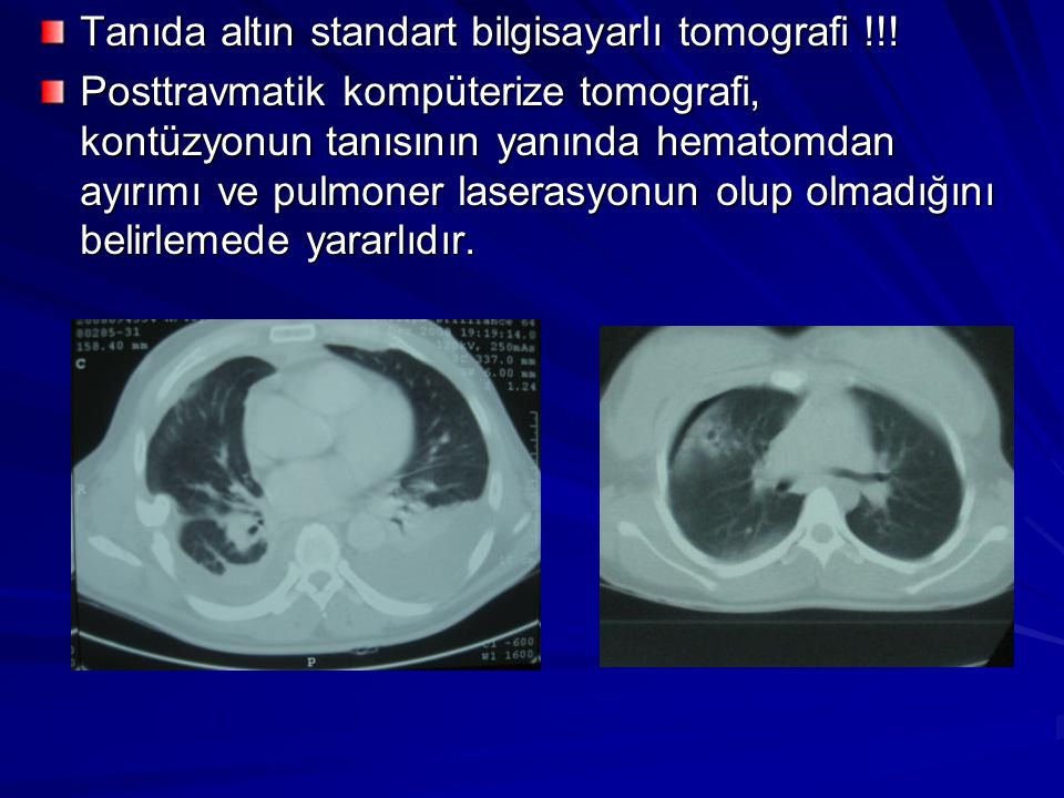 Tanıda altın standart bilgisayarlı tomografi !!.