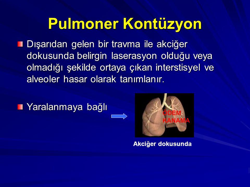 Pulmoner Kontüzyon Dışarıdan gelen bir travma ile akciğer dokusunda belirgin laserasyon olduğu veya olmadığı şekilde ortaya çıkan interstisyel ve alveoler hasar olarak tanımlanır.