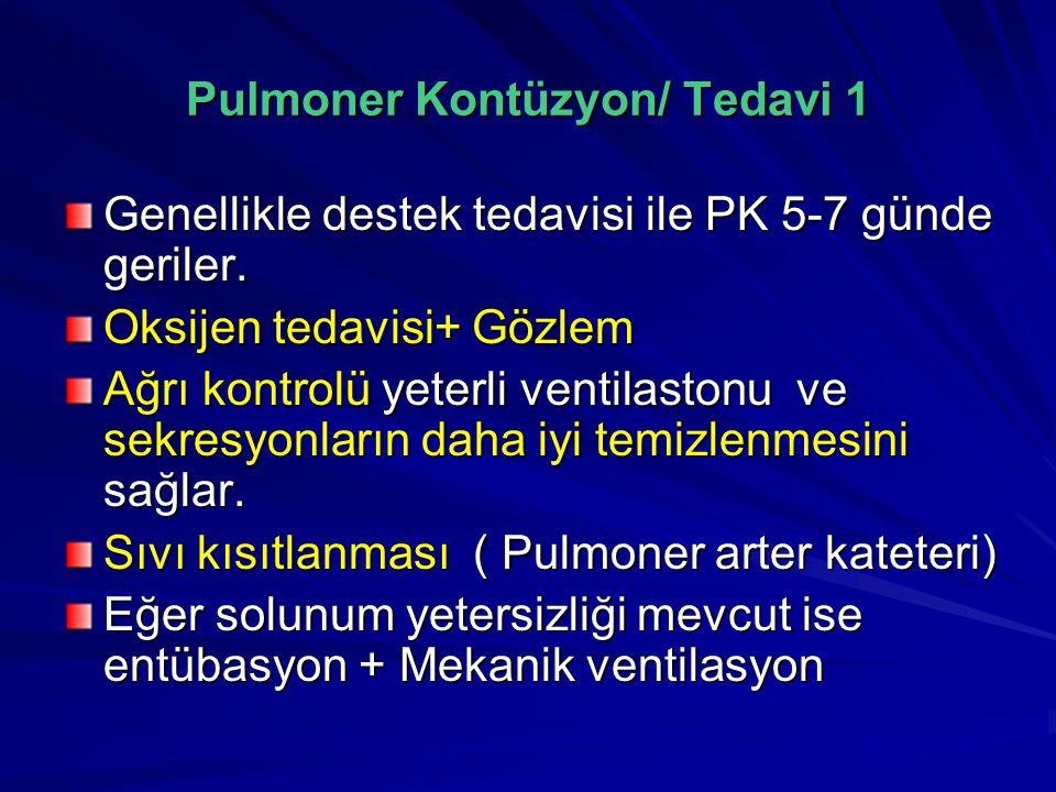 Pulmoner Kontüzyon/ Tedavi 1 Genellikle destek tedavisi ile PK 5-7 günde geriler.