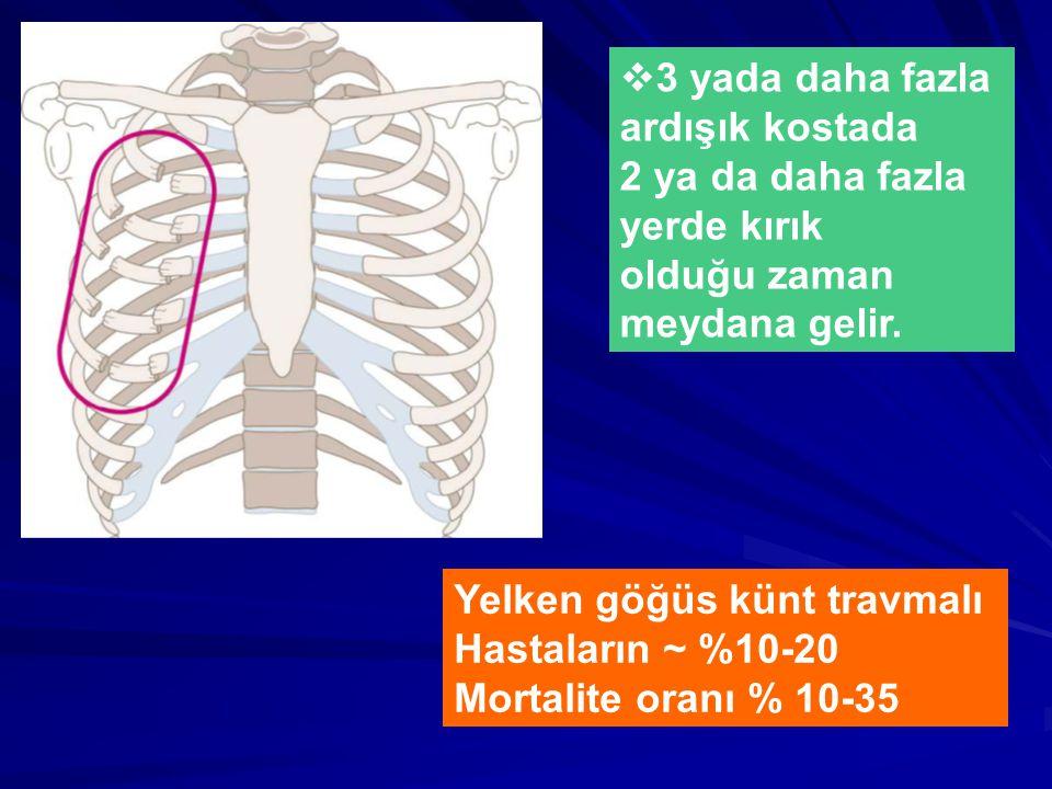  3 yada daha fazla ardışık kostada 2 ya da daha fazla yerde kırık olduğu zaman meydana gelir.