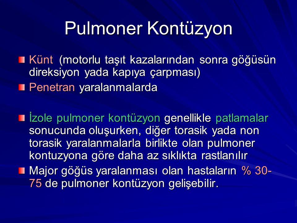 Pulmoner Kontüzyon Künt (motorlu taşıt kazalarından sonra göğüsün direksiyon yada kapıya çarpması) Penetran yaralanmalarda İzole pulmoner kontüzyon genellikle patlamalar sonucunda oluşurken, diğer torasik yada non torasik yaralanmalarla birlikte olan pulmoner kontuzyona göre daha az sıklıkta rastlanılır Major göğüs yaralanması olan hastaların % 30- 75 de pulmoner kontüzyon gelişebilir.
