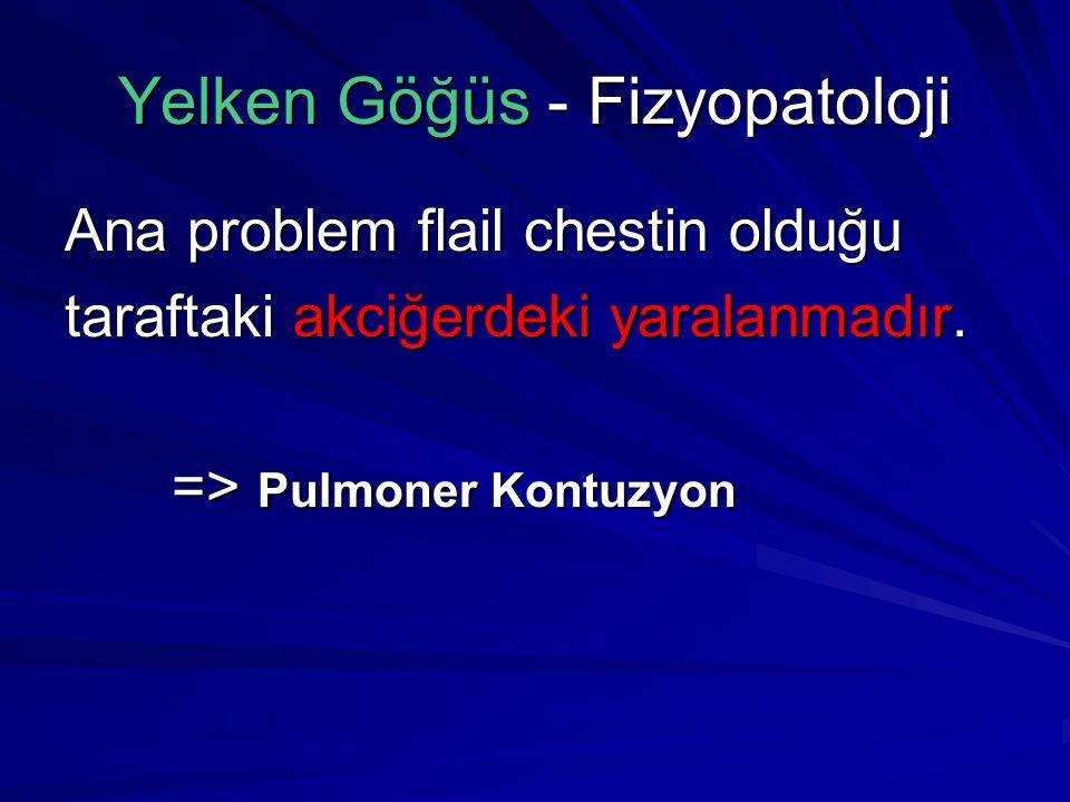 Yelken Göğüs - Fizyopatoloji Ana problem flail chestin olduğu taraftaki akciğerdeki yaralanmadır.