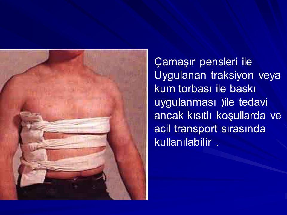 Çamaşır pensleri ile Uygulanan traksiyon veya kum torbası ile baskı uygulanması )ile tedavi ancak kısıtlı koşullarda ve acil transport sırasında kullanılabilir.