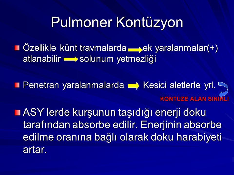 Pulmoner Kontüzyon Özellikle künt travmalarda ek yaralanmalar(+) atlanabilir solunum yetmezliği Penetran yaralanmalarda Kesici aletlerle yrl.