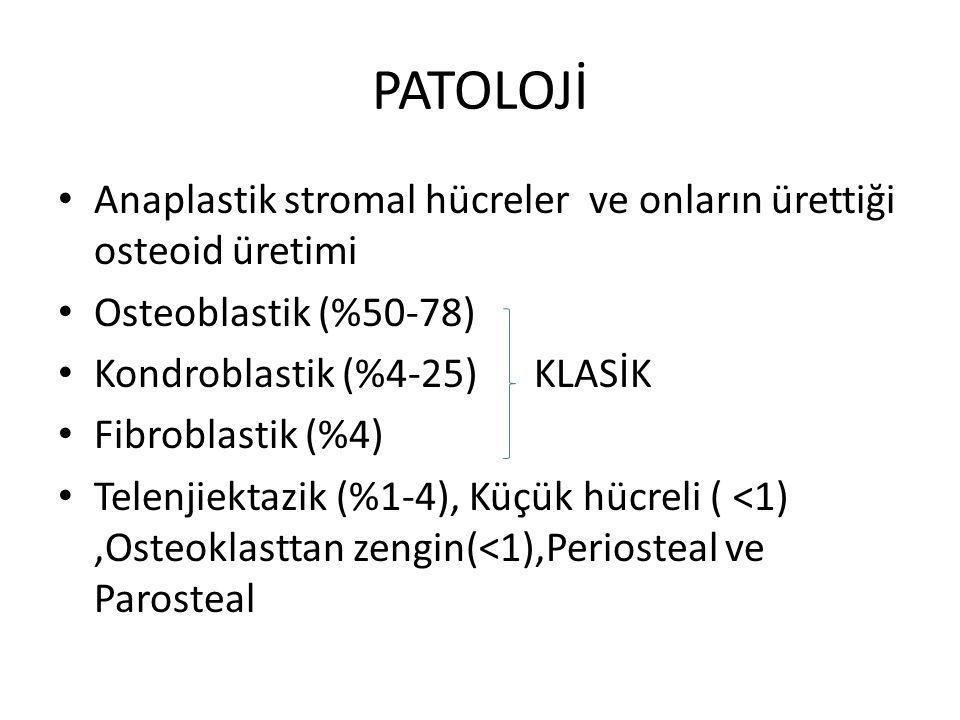 PATOLOJİ Anaplastik stromal hücreler ve onların ürettiği osteoid üretimi Osteoblastik (%50-78) Kondroblastik (%4-25) KLASİK Fibroblastik (%4) Telenjie