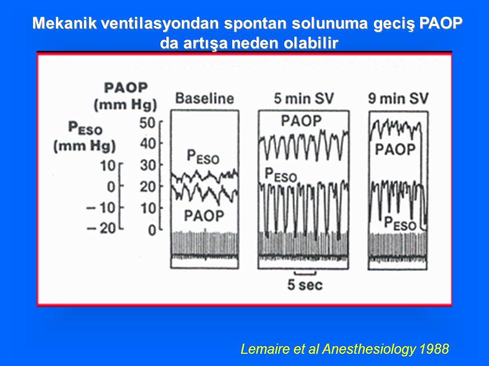 Mekanik ventilasyondan spontan solunuma geciş PAOP da artışa neden olabilir da artışa neden olabilir Lemaire et al Anesthesiology 1988