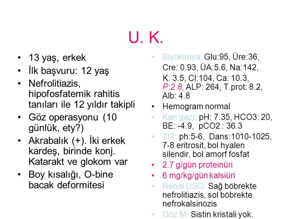 U. K. 13 yaş, erkek İlk başvuru: 12 yaş Nefrolitiazis, hipofosfatemik rahitis tanıları ile 12 yıldır takipli Göz operasyonu (10 günlük, ety?) Akrabalı