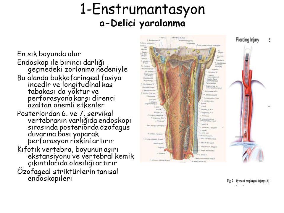 1-Enstrumantasyon a-Delici yaralanma En sık boyunda olur Endoskop ile birinci darlığı geçmedeki zorlanma nedeniyle Bu alanda bukkofaringeal fasiya inc