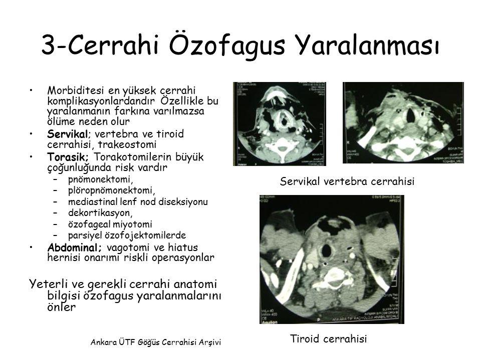 3-Cerrahi Özofagus Yaralanması Morbiditesi en yüksek cerrahi komplikasyonlardandır Özellikle bu yaralanmanın farkına varılmazsa ölüme neden olur Servi