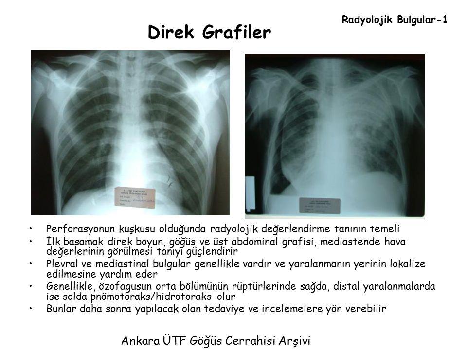 Direk Grafiler Perforasyonun kuşkusu olduğunda radyolojik değerlendirme tanının temeli İlk basamak direk boyun, göğüs ve üst abdominal grafisi, medias