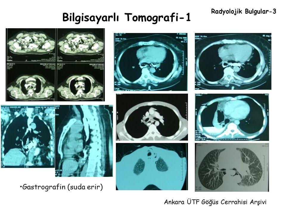 Bilgisayarlı Tomografi-1 Ankara ÜTF Göğüs Cerrahisi Arşivi Gastrografin (suda erir) Radyolojik Bulgular-3
