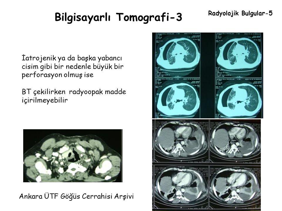 Bilgisayarlı Tomografi-3 Ankara ÜTF Göğüs Cerrahisi Arşivi Radyolojik Bulgular-5 İatrojenik ya da başka yabancı cisim gibi bir nedenle büyük bir perfo