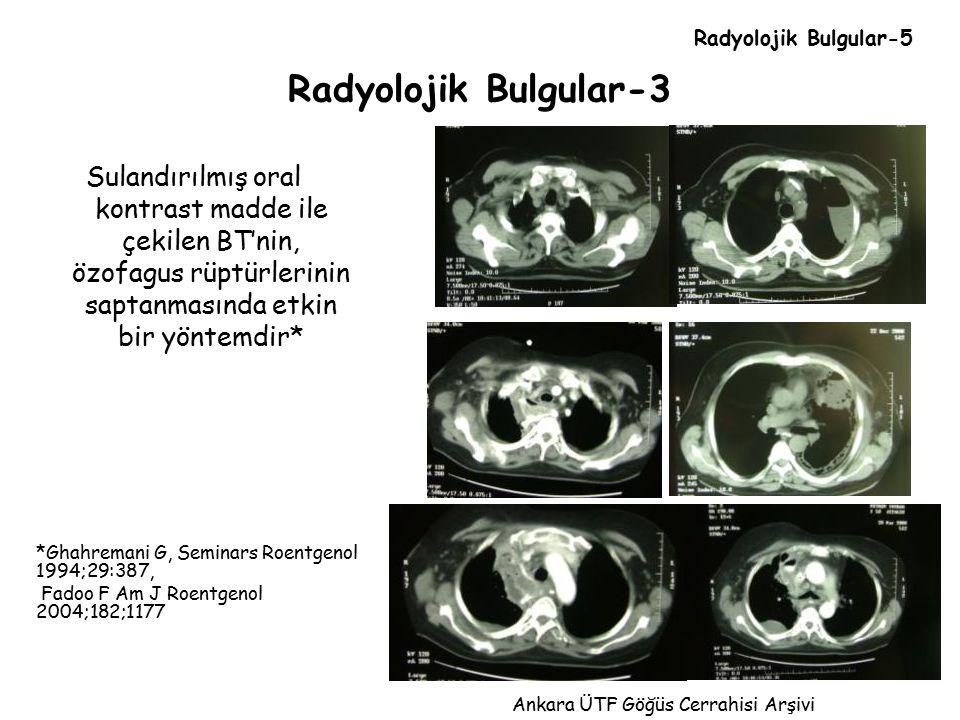 Radyolojik Bulgular-3 Sulandırılmış oral kontrast madde ile çekilen BT'nin, özofagus rüptürlerinin saptanmasında etkin bir yöntemdir* *Ghahremani G, S