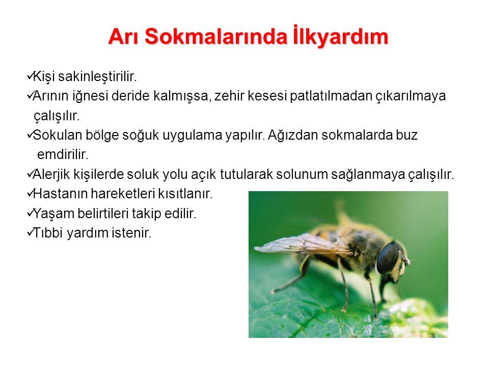 Arı Sokmalarında İlkyardım Kişi sakinleştirilir. Arının iğnesi deride kalmışsa, zehir kesesi patlatılmadan çıkarılmaya çalışılır. Sokulan bölge soğuk