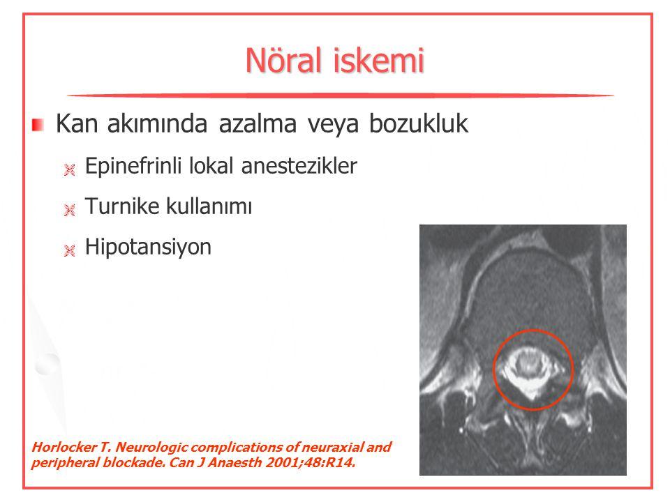 Sinir hasarı İğne ile ilişkili Nöral iskemi Lokal anesteziklere bağlı Yüksek basınçlı enjeksiyonlar Deschner S, et al. Neurologic complication of peri