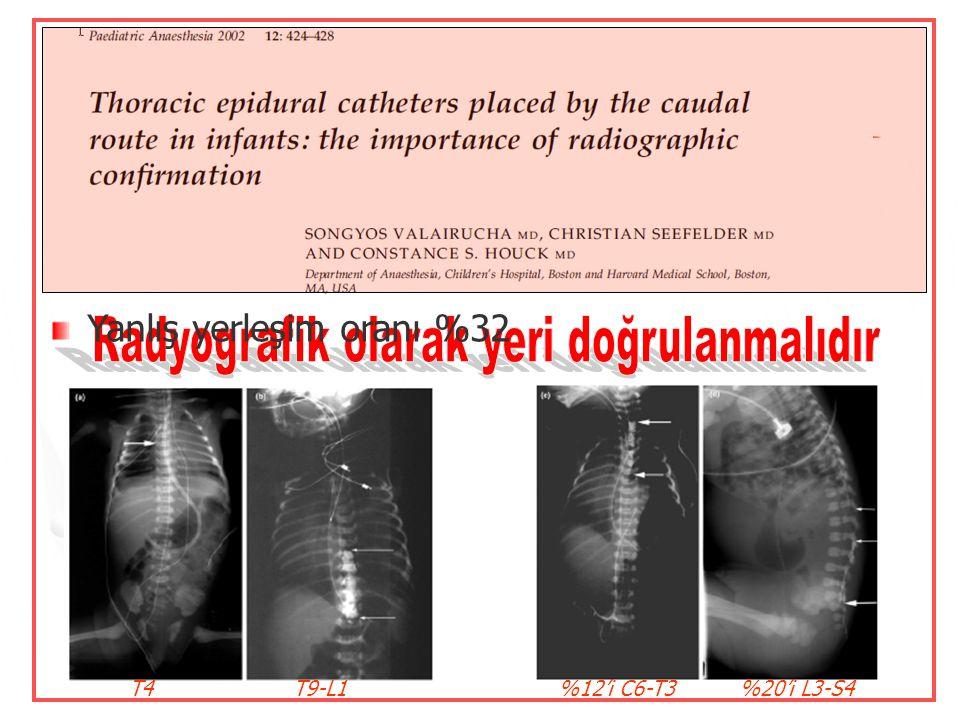 Torasik ve lumbal epiduralde spinal kord travması ve dural girişim Kaudal kateterizasyon tercih edilmekte Kateter istenen düzeye ilerletilebilir  Lum