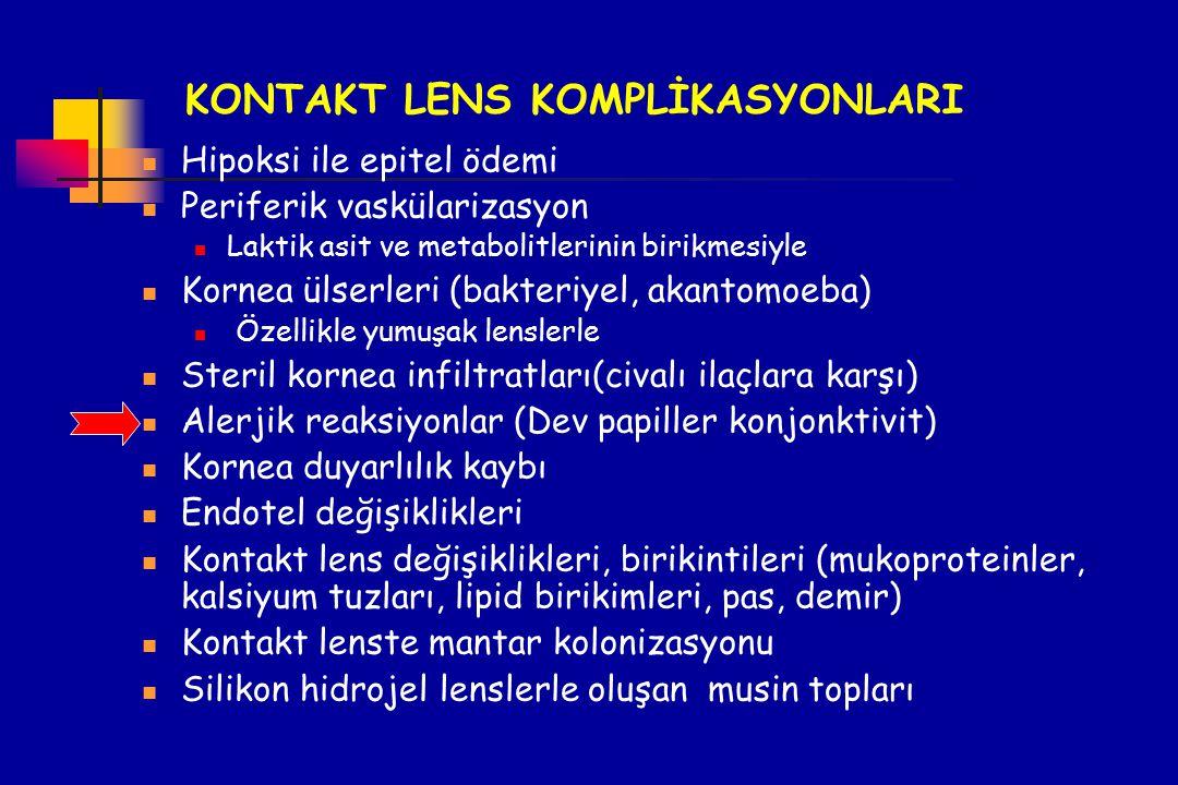 KONTAKT LENS KOMPLİKASYONLARI Hipoksi ile epitel ödemi Periferik vaskülarizasyon Laktik asit ve metabolitlerinin birikmesiyle Kornea ülserleri (bakter