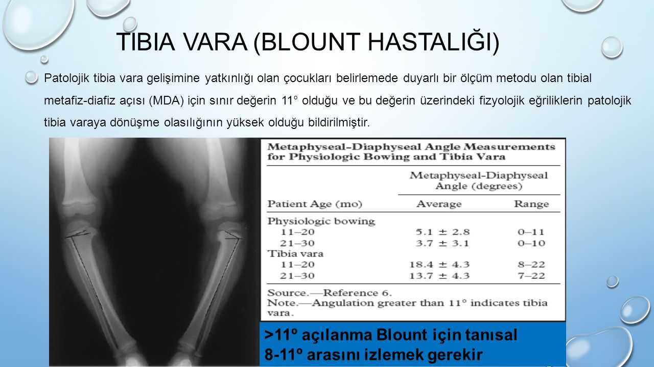 TIBIA VARA (BLOUNT HASTALIĞI) >11º açılanma Blount için tanısal 8-11º arasını izlemek gerekir Patolojik tibia vara gelişimine yatkınlığı olan çocuklar