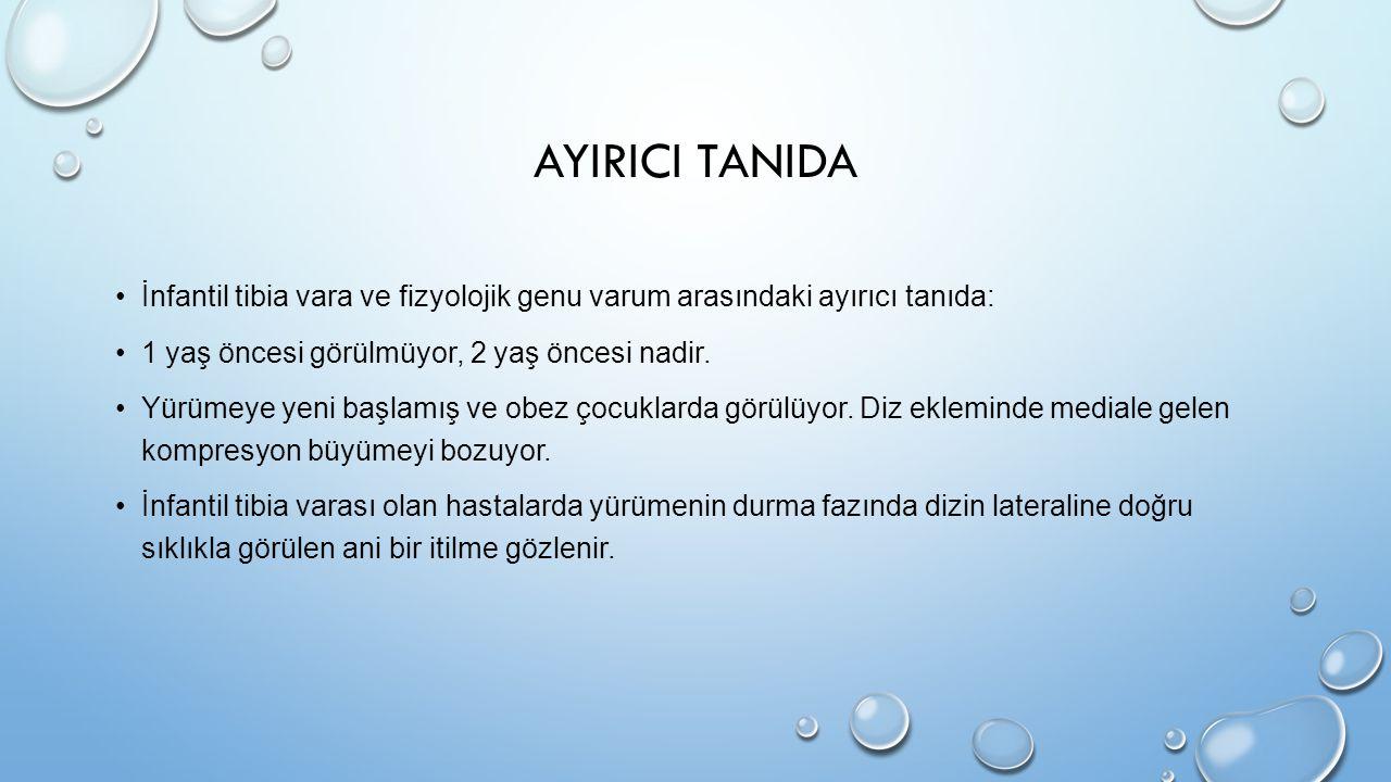 AYIRICI TANIDA İnfantil tibia vara ve fizyolojik genu varum arasındaki ayırıcı tanıda: 1 yaş öncesi görülmüyor, 2 yaş öncesi nadir. Yürümeye yeni başl