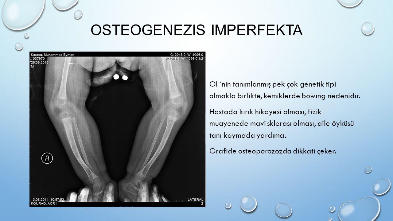 OSTEOGENEZIS IMPERFEKTA OI 'nin tanımlanmış pek çok genetik tipi olmakla birlikte, kemiklerde bowing nedenidir. Hastada kırık hikayesi olması, fizik m