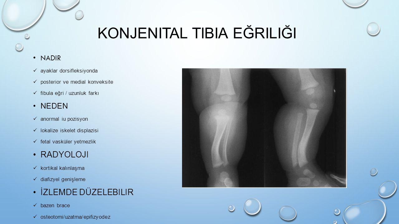 KONJENITAL TIBIA EĞRILIĞI NADIR ayaklar dorsifleksiyonda posterior ve medial konveksite fibula eğri / uzunluk farkı NEDEN anormal iu pozisyon lokalize
