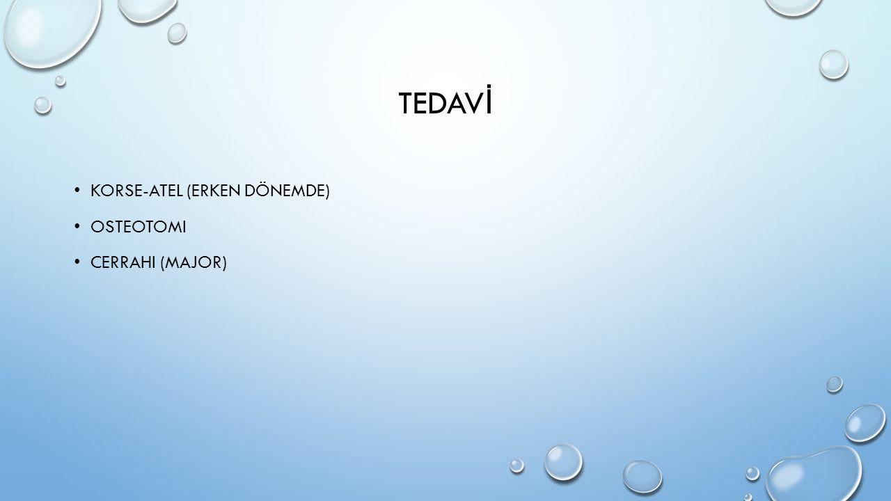 TEDAV İ KORSE-ATEL (ERKEN DÖNEMDE) OSTEOTOMI CERRAHI (MAJOR)