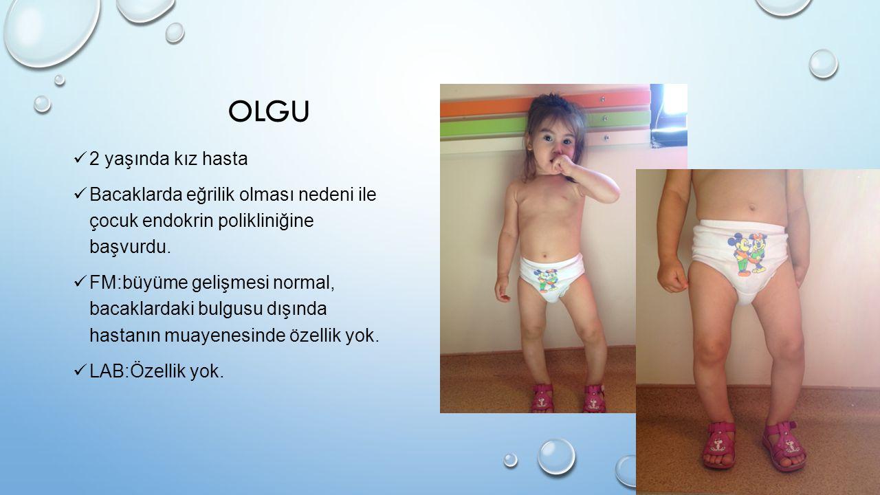 OLGU 2 yaşında kız hasta Bacaklarda eğrilik olması nedeni ile çocuk endokrin polikliniğine başvurdu. FM:büyüme gelişmesi normal, bacaklardaki bulgusu