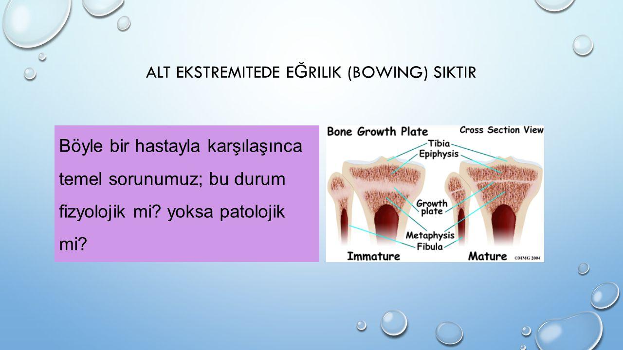 ALT EKSTREMITEDE E Ğ RILIK (BOWING) SIKTIR Böyle bir hastayla karşılaşınca temel sorunumuz; bu durum fizyolojik mi? yoksa patolojik mi?
