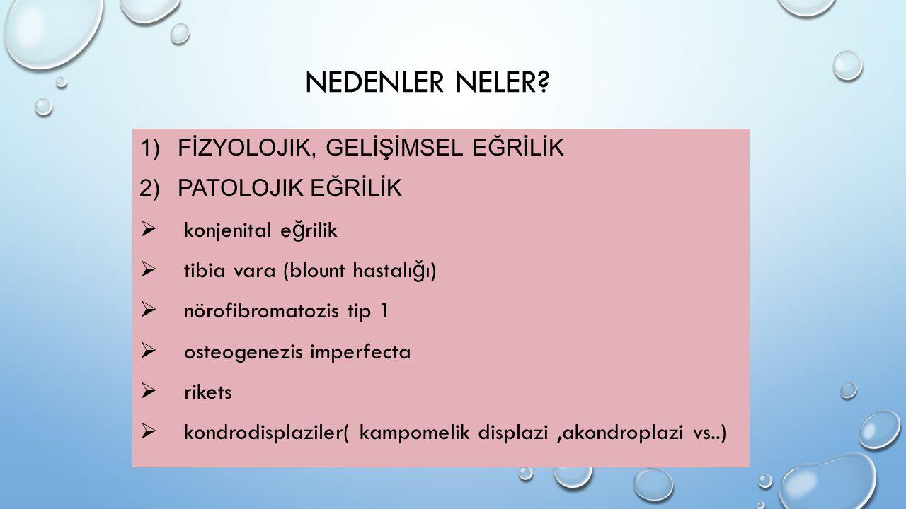 NEDENLER NELER? 1)FİZYOLOJIK, GELİŞİMSEL EĞRİLİK 2)PATOLOJIK EĞRİLİK  konjenital e ğ rilik  tibia vara (blount hastalı ğ ı)  nörofibromatozis tip 1