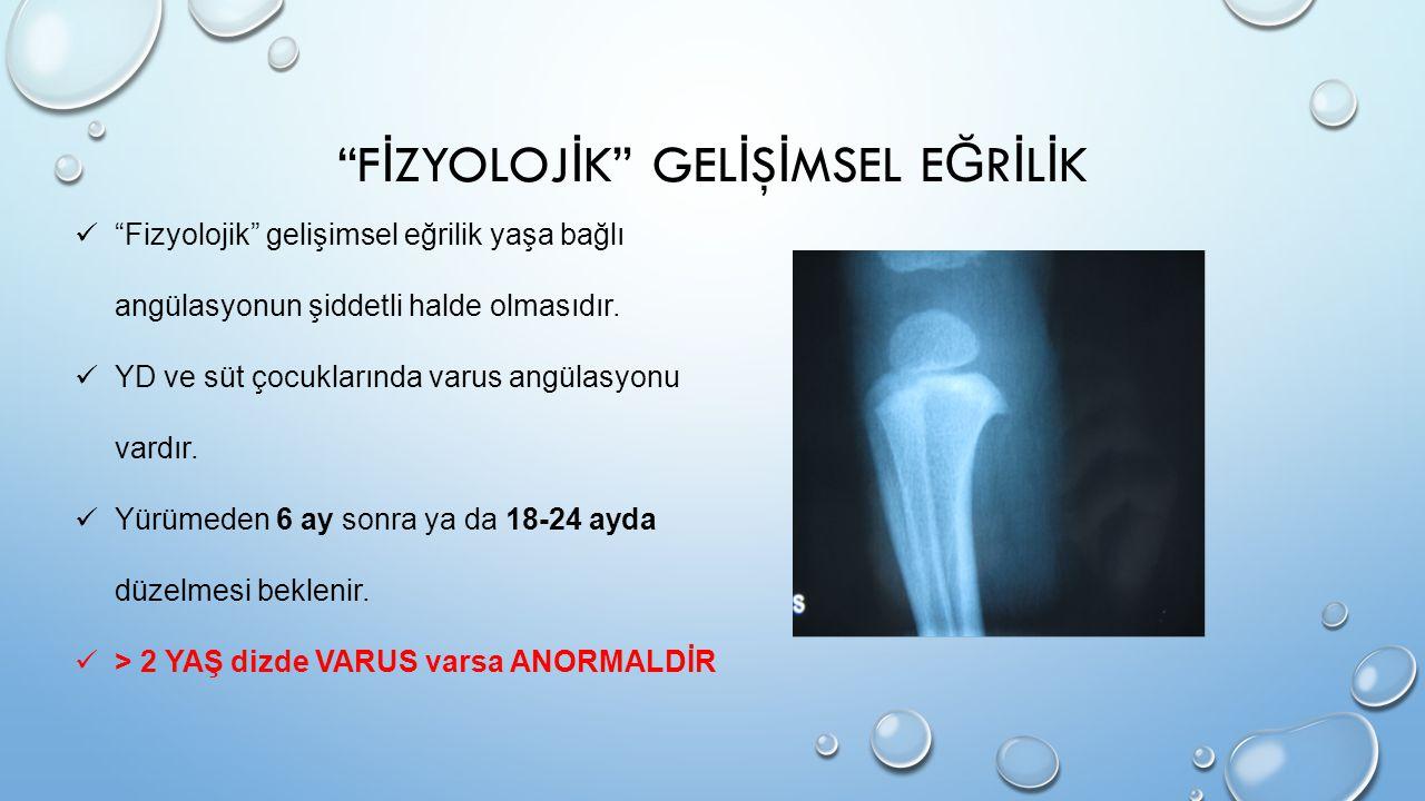 TANI Tanı ancak proksimal tibiadaki karakteristik radyografik değişikliklerin görülmesi ile konabilir.