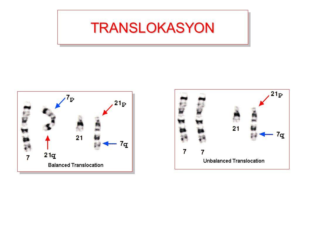 TRANSLOKASYONTRANSLOKASYON