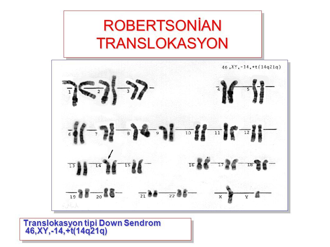 Translokasyon tipi Down Sendrom 46,XY,-14,+t(14q21q) ROBERTSONİAN TRANSLOKASYON