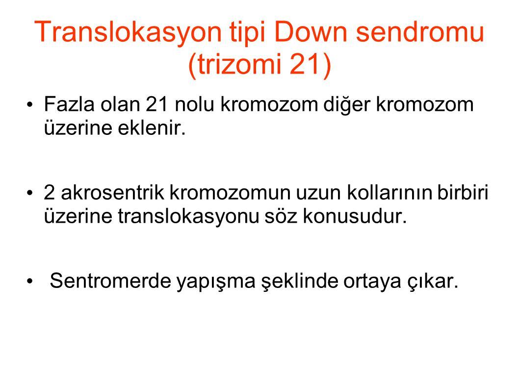 Translokasyon tipi Down sendromu (trizomi 21) Fazla olan 21 nolu kromozom diğer kromozom üzerine eklenir. 2 akrosentrik kromozomun uzun kollarının bir