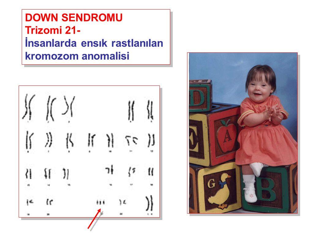 DOWN SENDROMU Trizomi 21- İnsanlarda ensık rastlanılan kromozom anomalisi DOWN SENDROMU Trizomi 21- İnsanlarda ensık rastlanılan kromozom anomalisi
