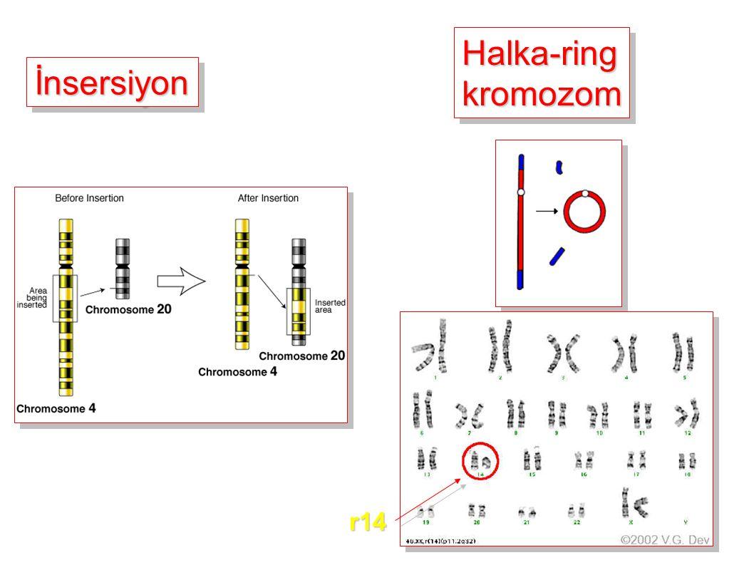 İnsersiyonİnsersiyon Halka-ringkromozomHalka-ringkromozom r14