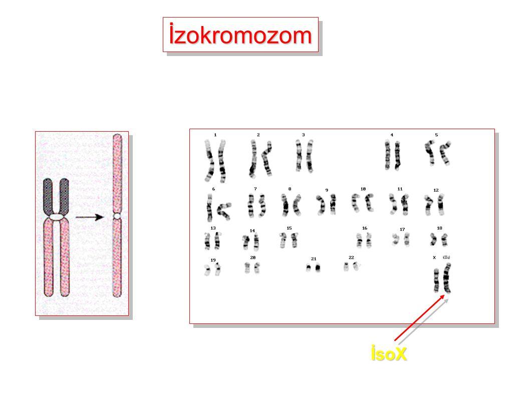 İzokromozomİzokromozom İsoX